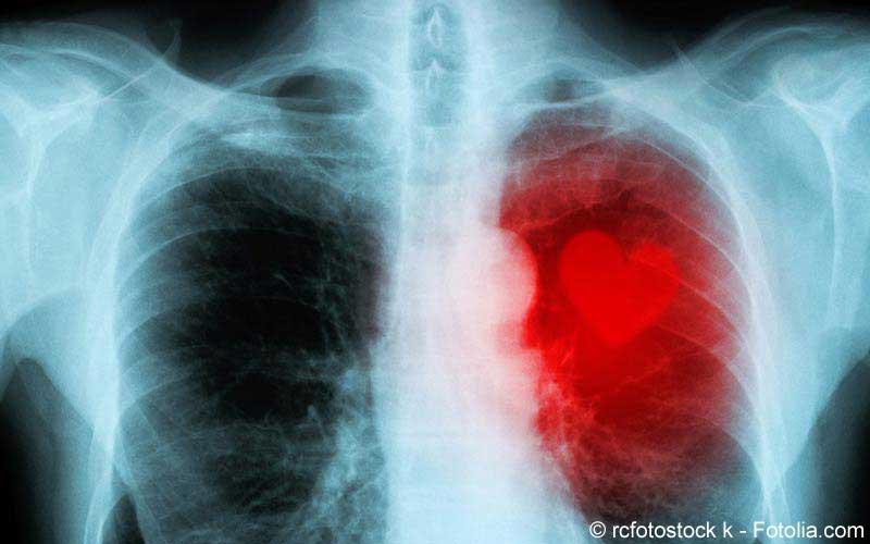 Herz Röntgen