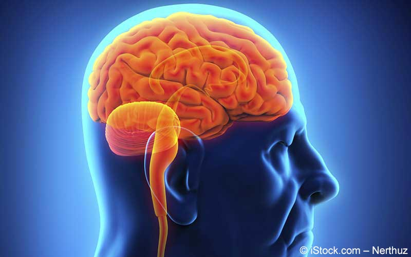 Gehirn-Epilepsie