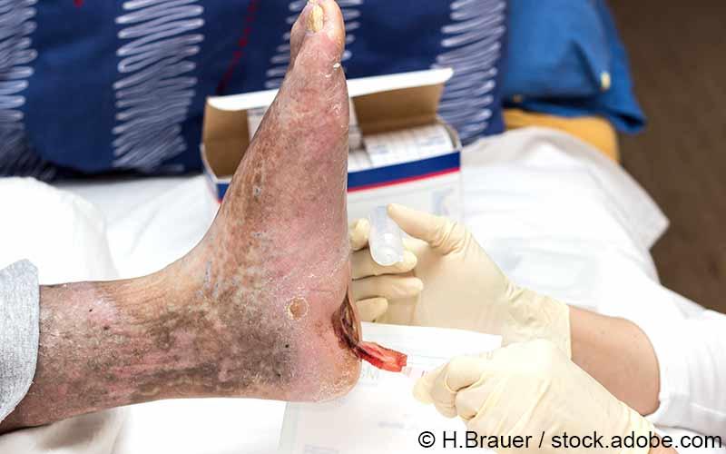 Behandlung Diabetischer Fuß