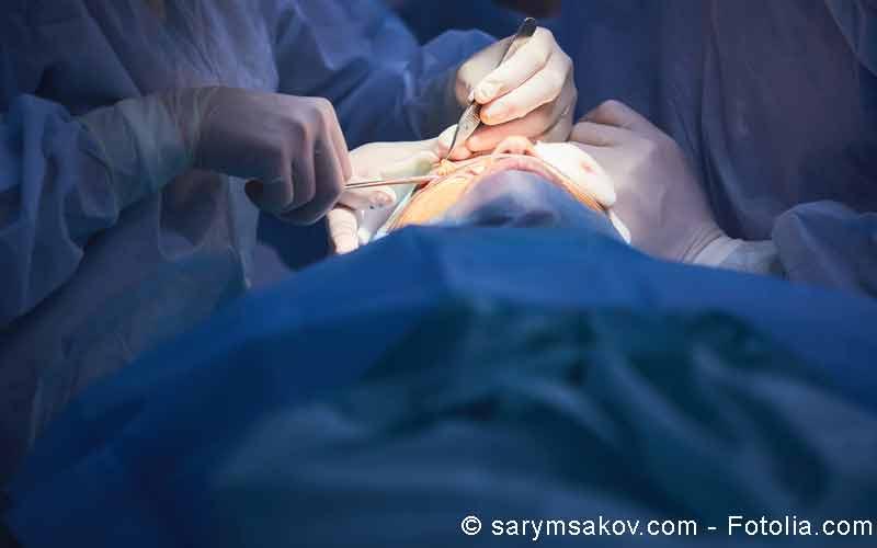 Augen Operation
