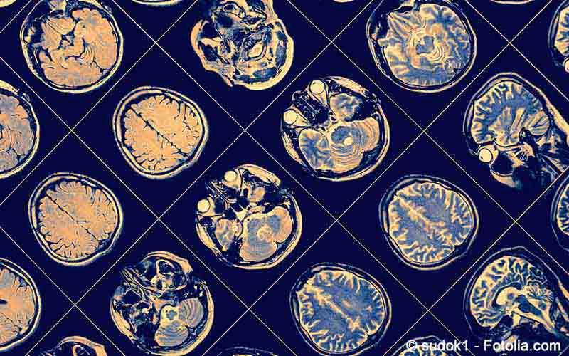 MRT-Bilder Gehirn