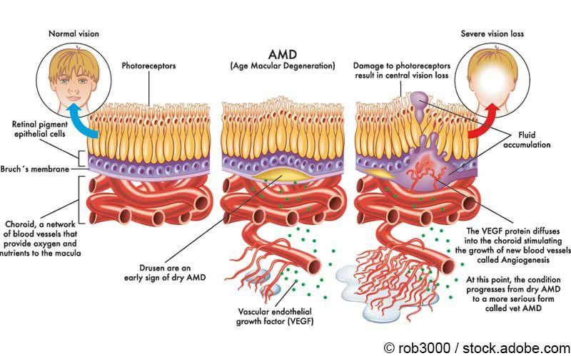 Altersbedingte Makuladegeneration Medikamente