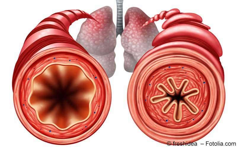 Asthma - Schema