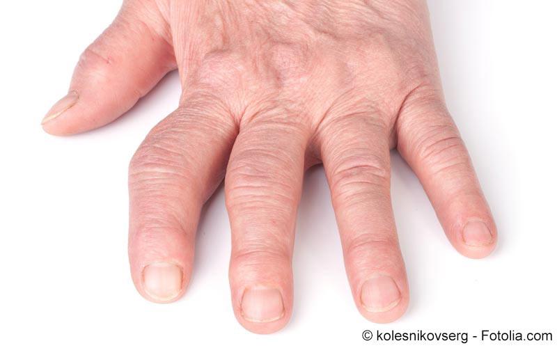 Symptome Bei Gicht