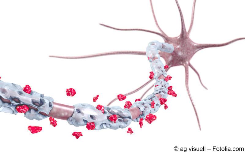 Multiple Sklerose Nervenzelle