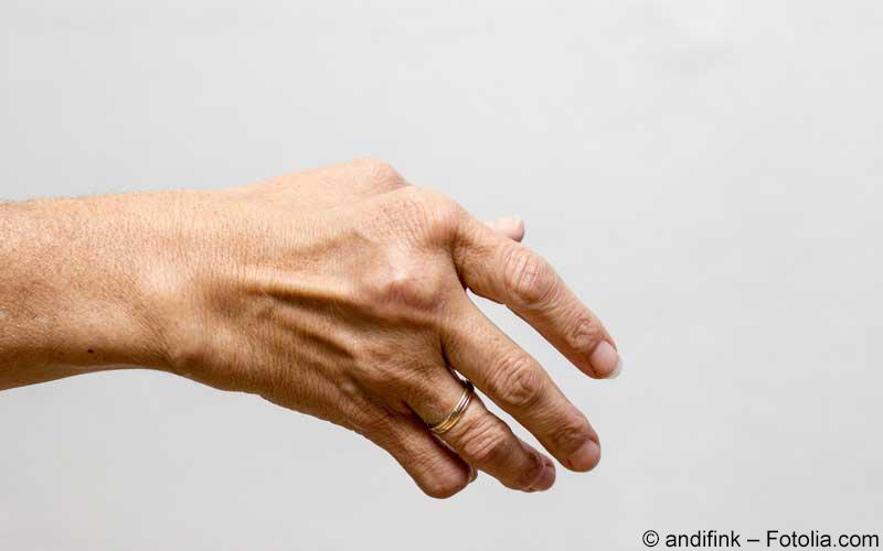Rheuma an der Hand